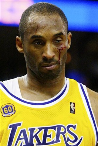 Kobe Bryant agrees to overseas deal