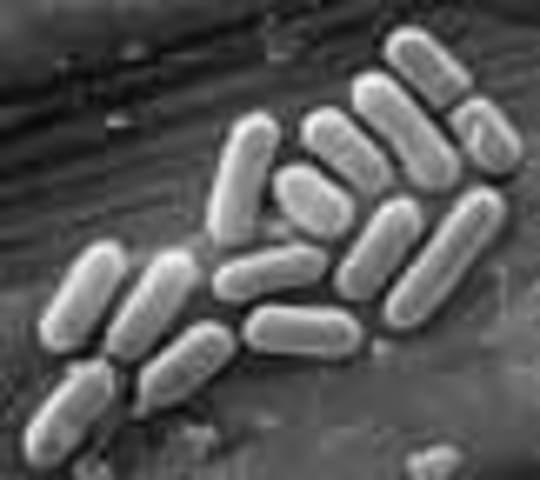 Five probiotic claims fail