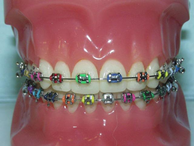 Got first set of braces.