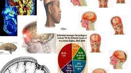 Traumatic Brain Injury timeline