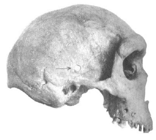 Homo cepranensis  - 800000 años