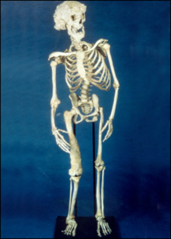 """Supposedly tries to buy the """"Elephant Man""""s (John Merrick) skeleton for a reported one million dollars."""