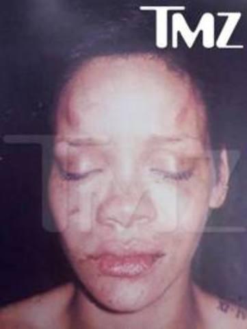 Rihanna's boyfriend Chris Brown beat her up