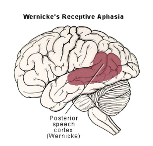 Wernicke's Cerebral Localization of Disease