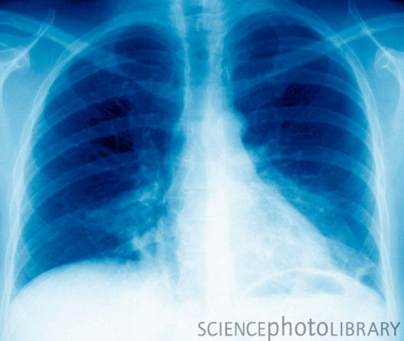 Legionnaire's Disease hit 182, killed 29