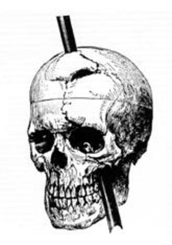 Phineas Gage, a railway worker, had an accident that caused permanent brain damage and made him a famous figure in psychology.