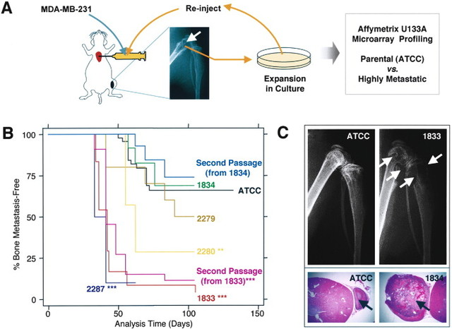 A multigenic program mediating breast cancer metastasis to bone
