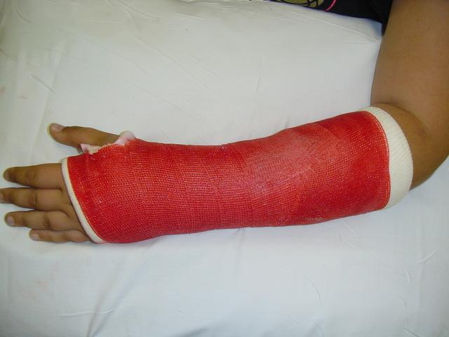 Broken arm in 6th Grade