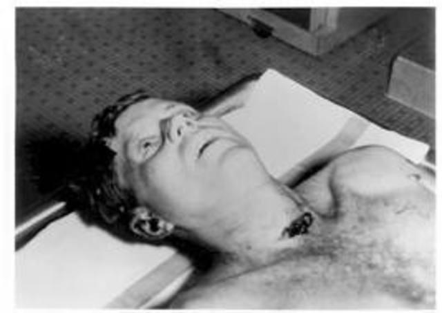 JFK Dead
