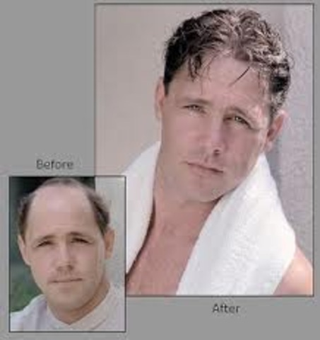 A baldness treatment was invented