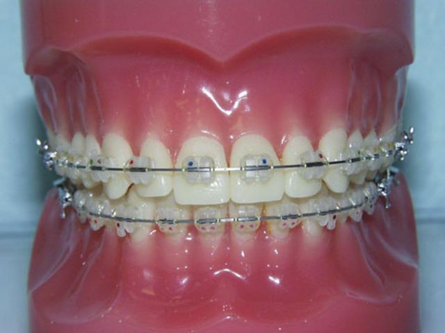 Got braces