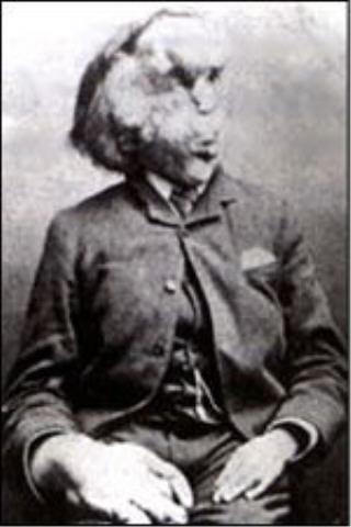 "Joseph Merrick ""The Elephant Man"" is born in Leicester, England"