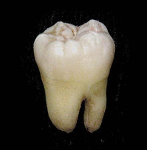 Kurt Lemon has dentist pull a tooth