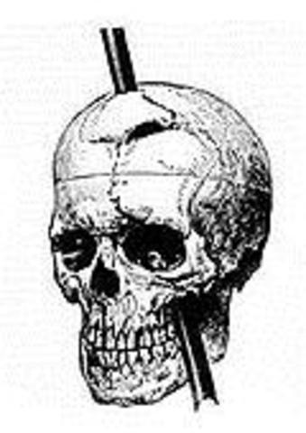 Phineas Gage Personality breakthrough
