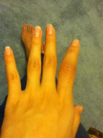 Sprained my Finger in Basketball