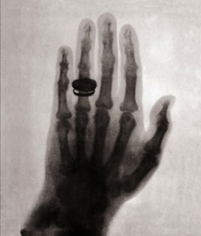 William Roentgen discovered X-rays.