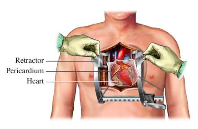 First Open Heart Surgery