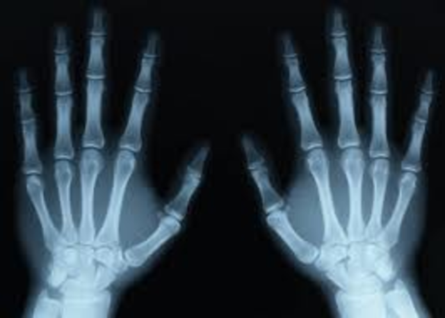 Discoved X-rays