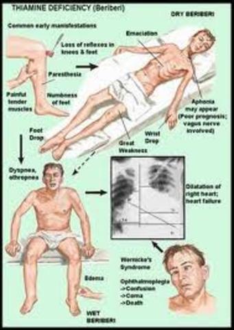 second disease: Beri-beri
