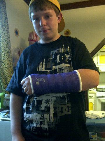 Mi hijo se rompió el brazo