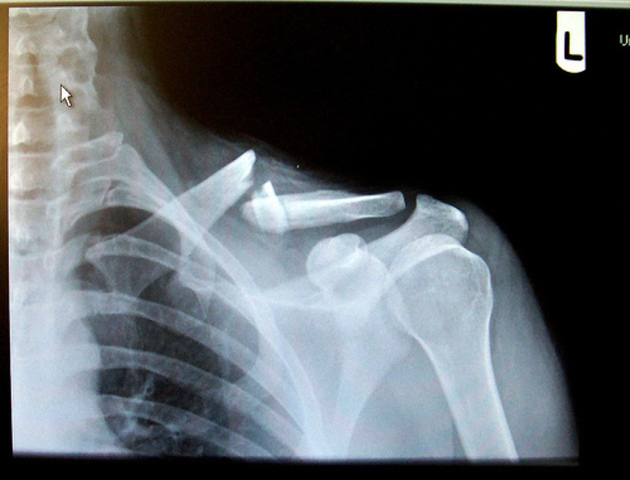 Me rompí la clavícula (collar bone)