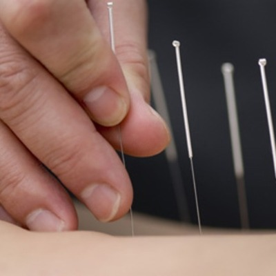 Acupuncture: A Walk Through Its History timeline