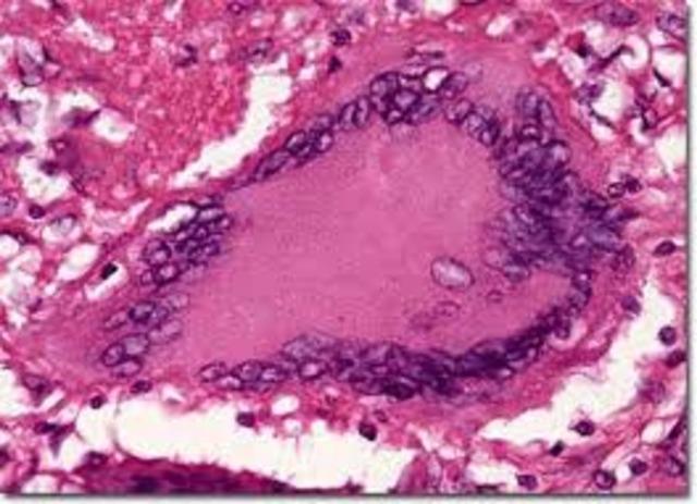 Bacil de la tuberculosi