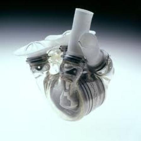 Corazón Artificial AbioCor