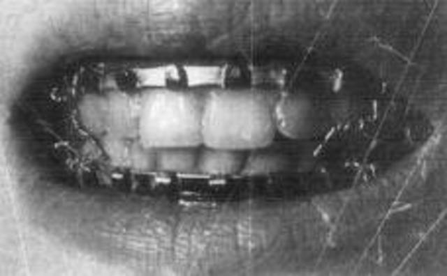 Braces date back to 400-300 BC