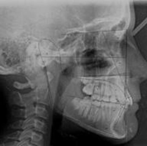 During the 1800's steady advances were made such as gum elastics and orthodontic x-rays