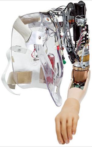 Active Bionic Prosthesis ( Robotic Limbs)
