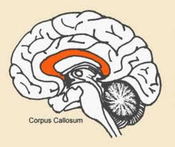 split brain experiment