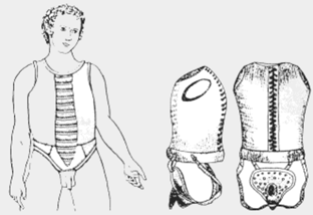 Artefactos metálicos anti-masturbación.