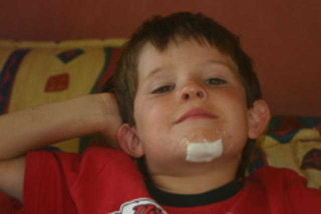 my first chin injury
