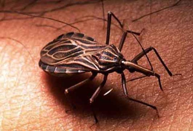 Enfermedad de Chagas.