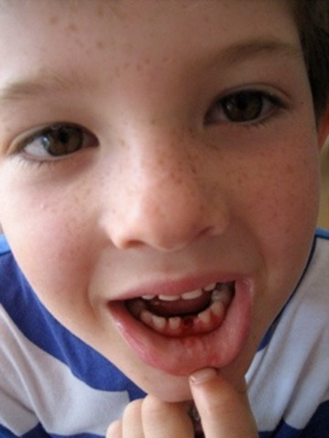 I lost my first tooth