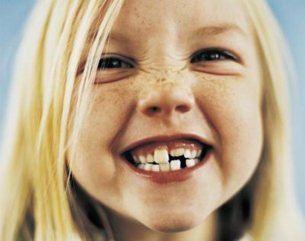 Early Years – Loss of Teeth