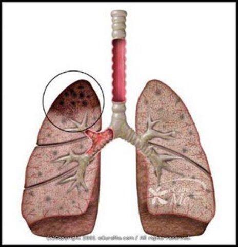 tuberculosis vaccine