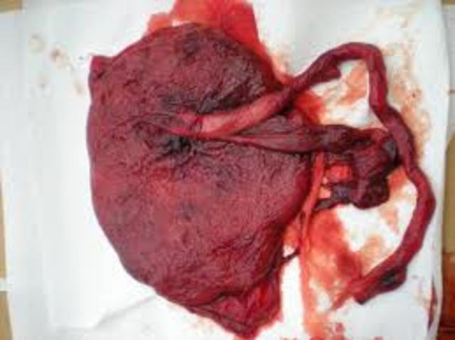 Placenta Forms