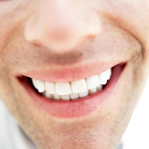 Got braces off