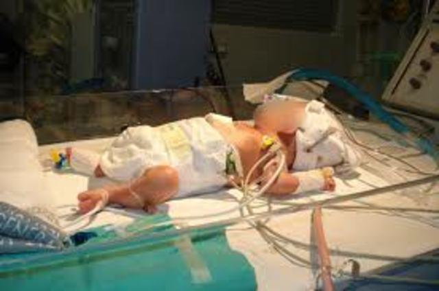 fui hospitalizado por que naci con una infexion