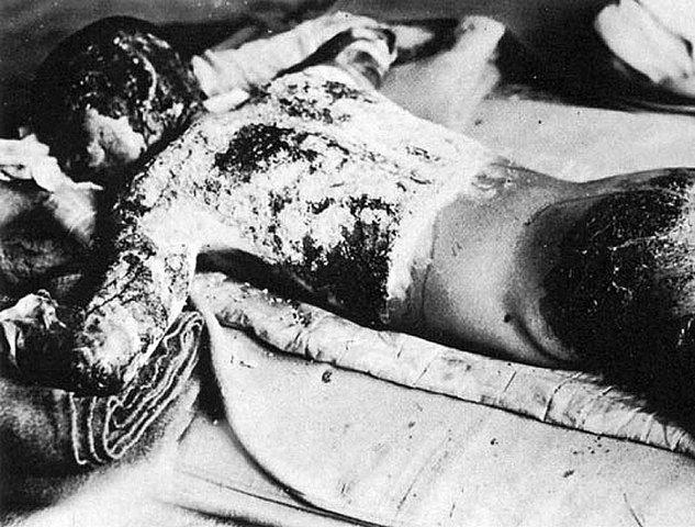 "United States Drops ""Little Boy"" on Hiroshima"