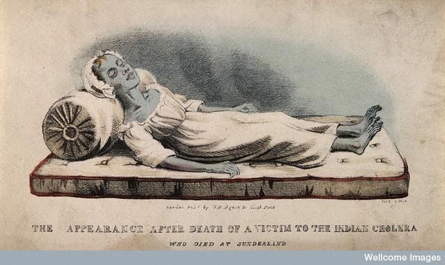 Cholera outbreak in Britain