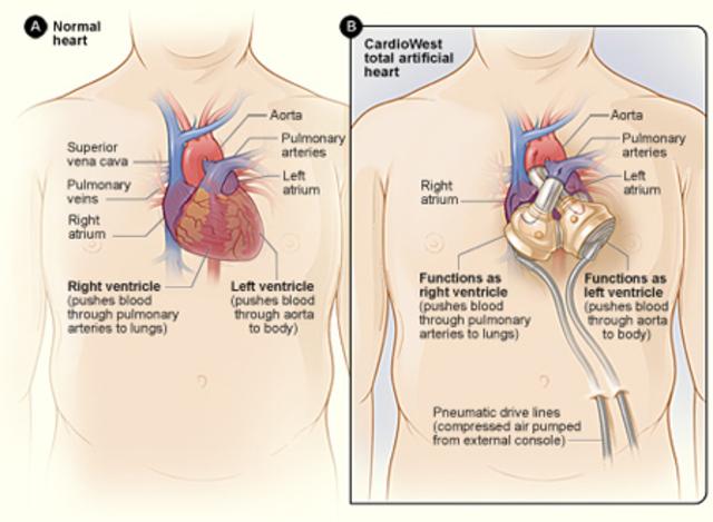 Artificial Heart.
