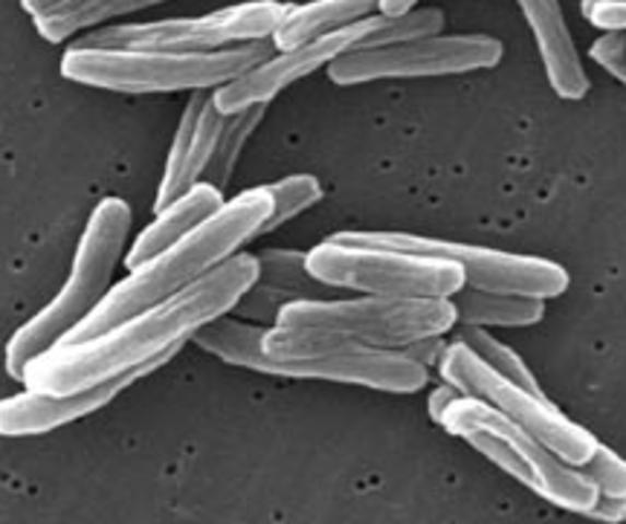 TB Bacteria Isolated