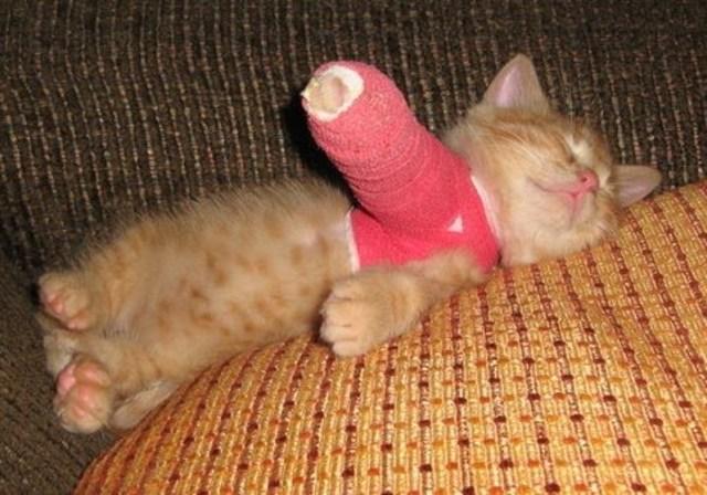 Yo rompí mi brazo