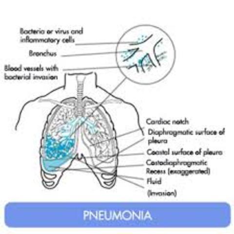Biosocial: Pneumonia