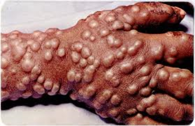 Small Pox spread from India to Europe