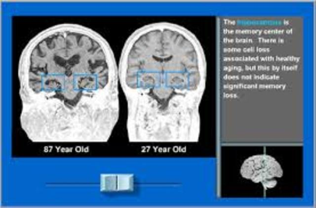 Late Adulthood: Cognitive Development: The Brain