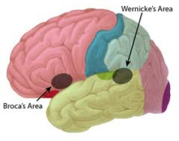 Carl Wernicke and the Brain